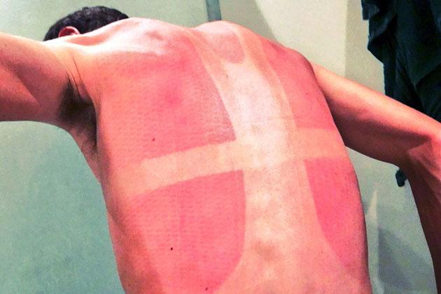 Sunburn - Terbakar matahari karena jersey yang tidak optimal