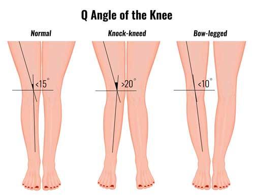 Q Angle pada kaki manusia